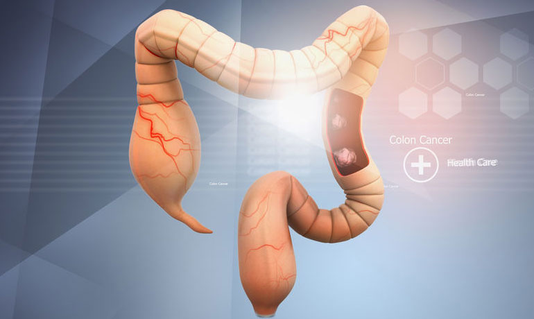 מרכז לסקר ומניעת סרטן במערכת העיכול